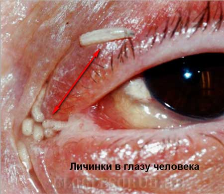 личинка-в-глазу-человека фото